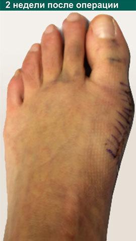 Как лечить вальгусную деформацию первого пальца стопы