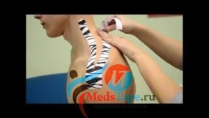 Лечение кифоза грудного отдела позвоночника: корсет, тейпирование, операция, массаж, мануальная терапия, скелетное вытяжение позвоночника