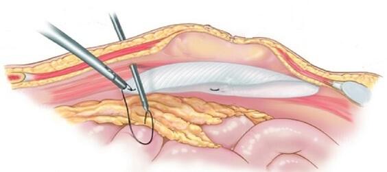 Лапароскопия пупочной грыжи у взрослых: противопоказания, подготовка, цены и отзывы