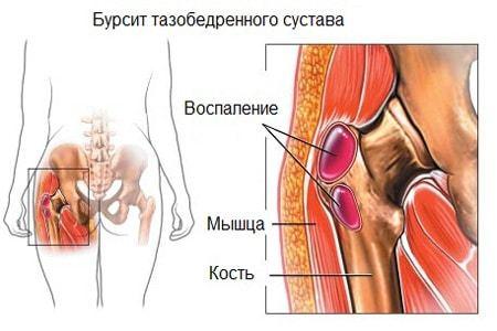 Бурсит бедра: симптомы, причины и лечение