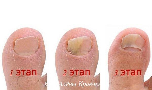 Экзодерил от грибка ногтей: отзывы врачей, описание и принцип действия