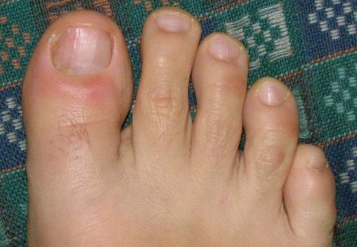 Гнойный нарыв на пальце ноги: лечение, как убрать и что делать
