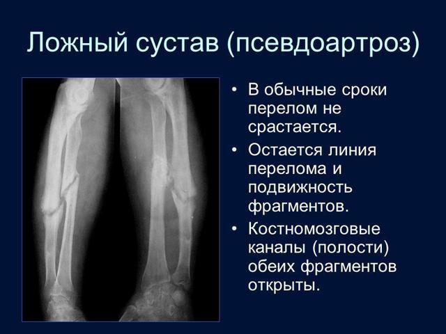 Ложный сустав шейки бедра: причины, классификация, симптомы и лечение