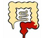 Катаральный проктосигмоидит: виды, симптомы и методы лечения