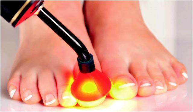 Грибок ногтя на большом пальце ноги: лечение, причины и симптомы, средства