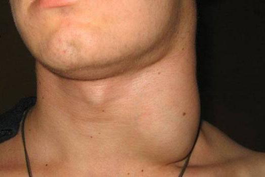 Лимфаденопатия брюшной полости у взрослых: причины, симптомы, лечение и прогноз