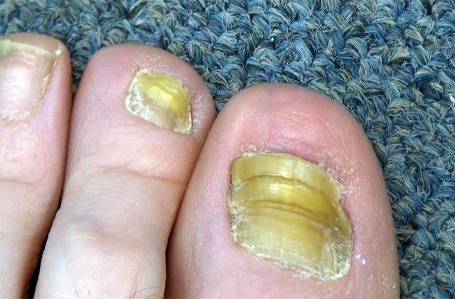 Как передается грибок ногтей на ногах: заразен или нет