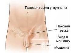 Лобковая кость у мужчин и женщин: где находится, как выглядит и ветви