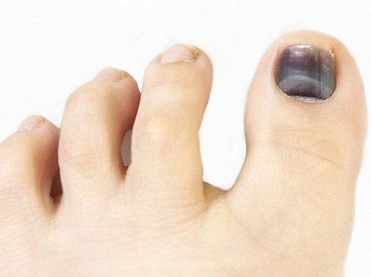 Как и чем лечить ушиб пальца на ноге: большой, мизинец
