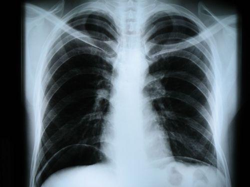 Основные способы обследования диафрагмы человека