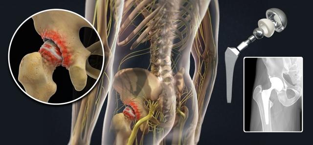 Перелом шейки бедра: первая помощь, лечение, реабилитация, прогноз и фото