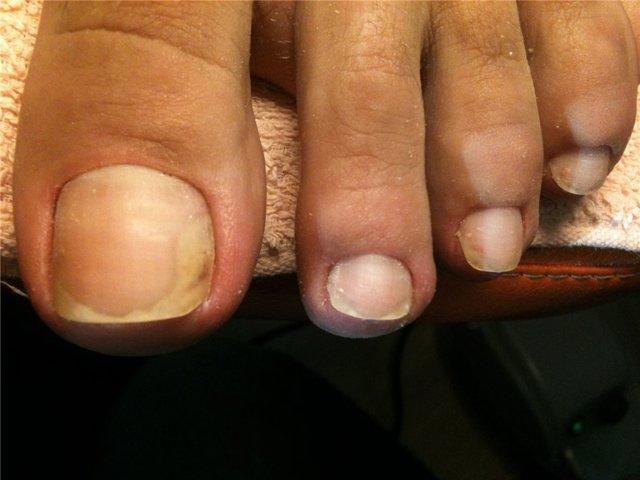 Жёлтые ногти на ногах: причины и лечение