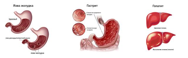 Ощущение тяжести в животе после еды: причины, тревожные симптомы, лечение и профилактика