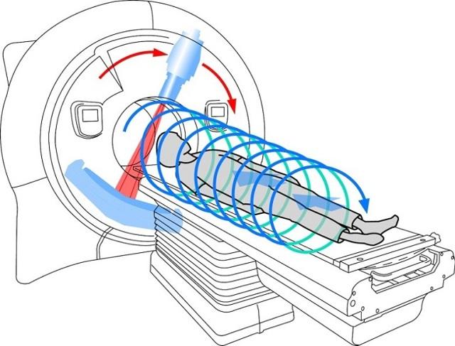 МРТ брюшной полости с контрастом и без: методика проведения, информативность и цена