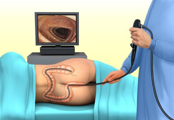 Острый живот: код по МКБ-10, симптомы, диагностика и первая помощь
