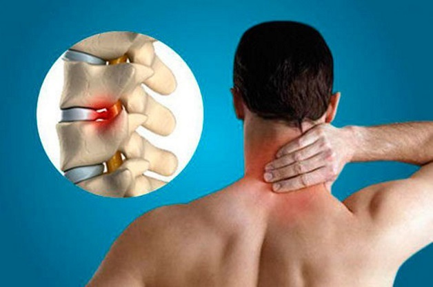 Скачки давления при шейном остеохондрозе: симптомы и лечение