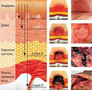 Лечение пролежней на копчике: методы терапии, профилактические меры и фото
