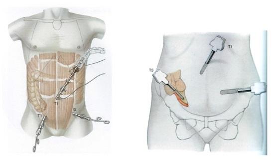 Лапароскопия аппендицита: подготовка, показания и противопоказания