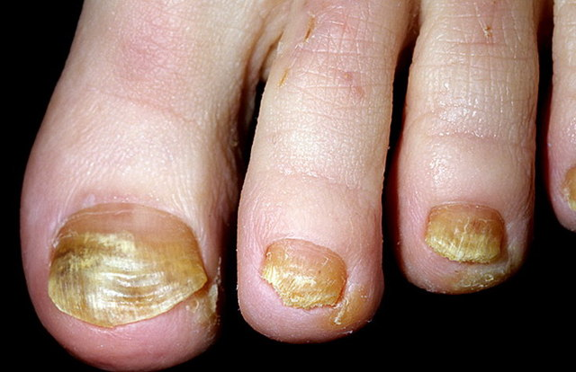Дистрофия и истощение ногтевой пластины на ногах: лечение, причины, фото