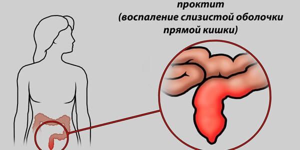 Эрозивный проктит: постлучевой атрофический, симптомы и лечение народными средствами в домашних условиях, признаки и диагностика, код по мкб-10