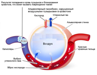 Проникающее ножевое ранение грудной клетки: код по МКБ-10 и признаки