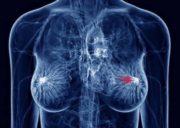 Протоковый рак молочной железы: симптомы, прогноз и лечение