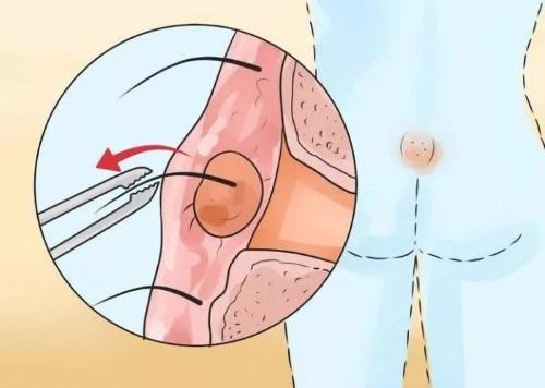 Лечение кисты копчика: к какому врачу обращаться, методы терапии и профилактические меры