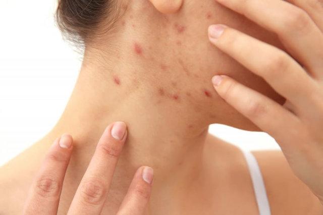 Прыщи на шее у женщин и мужчин: какой орган может быть не в порядке, причины появления больших и маленьких прыщиков, угревой сыпи, методы лечения