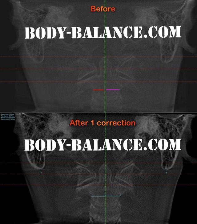 Смещение атланта: симптомы, постановка на место, вправление, упражнения и гимнастика для лечения и коррекции позвоночника