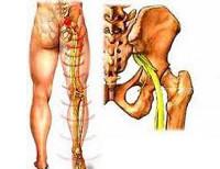Седалищный нерв, причины его воспаления и тактика лечения