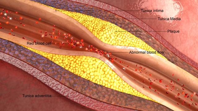 Окклюзия артерии: сонной, левой и правой позвоночной, подключичной