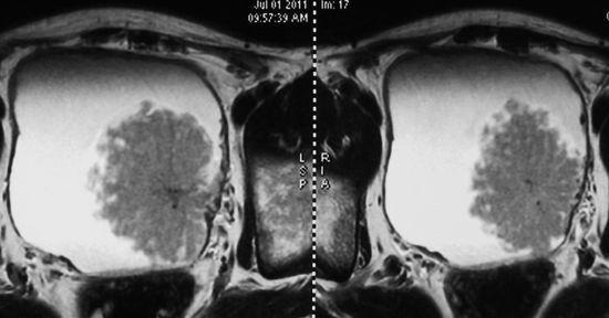 МСКТ органов малого таза: преимущества, что показывает, подготовка и возможные риски
