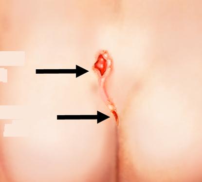 Операция по удалению кисты копчика: как проходит, цена, отзывы и фото
