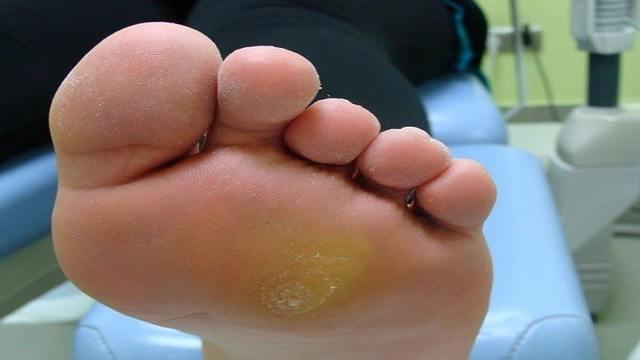 Как и чем лечить натоптыши на ногах: эффективные средства и советы