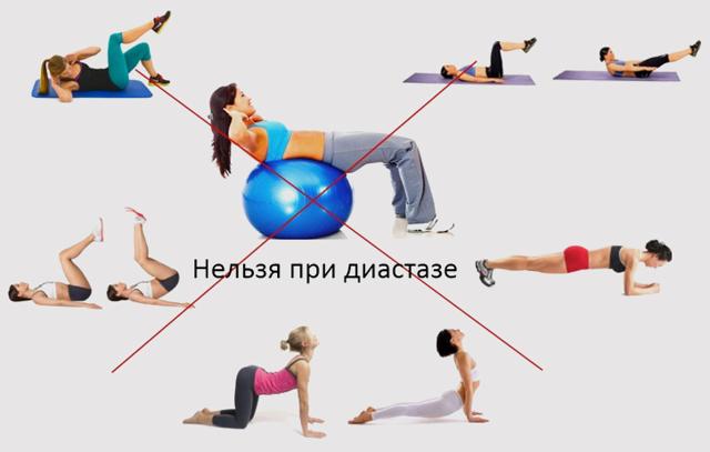 Комплекс упражнений при диастазе прямых мышц живота у мужчин и женщин: бодифлекс, лечебная гимнастика и ЛФК