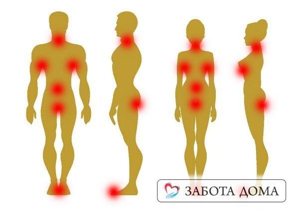 Опрелость на копчике у мужчин и женщин: причины, к какому врачу обращаться и способы лечения