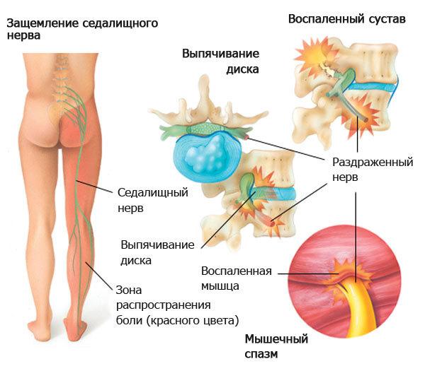 Медикаментозное лечение воспаления седалищного нерва: противопоказания, особенности применения и перечень популярных препаратов
