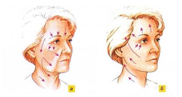 Подтяжка шеи, лица и подбородка: лифтиннг, ритидэктомия кожи, круговая, безоперационная, эндоскопическая подтяжка