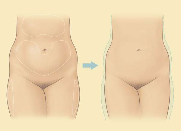 Кортизоловый живот: причины появления, лечение и профилактика