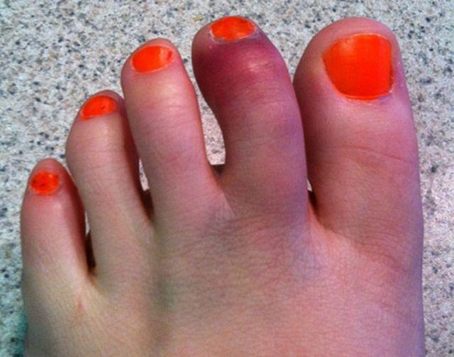 Как понять и определить сломан ли палец на ноге