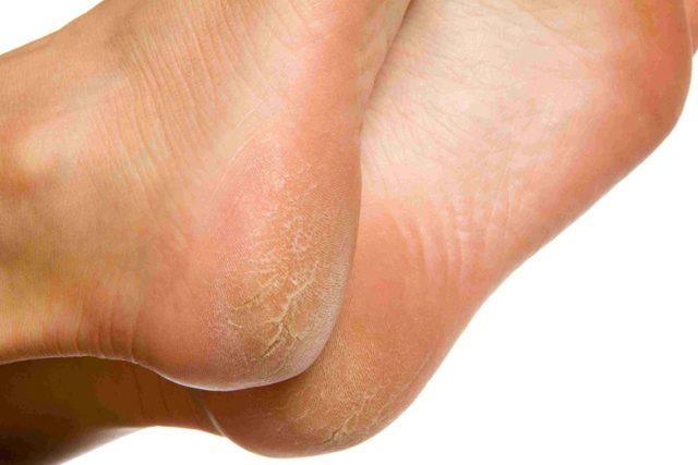 Как избавиться от натоптышей на ногах в домашних условиях