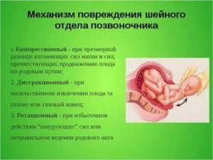 Родовая травма шейного отдела позвоночника: последствия у взрослых и детей, симптомы повреждения и лечение