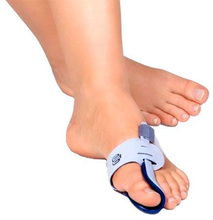 Как вправить вывих большого пальца ноги: что делать и симптомы растяжения
