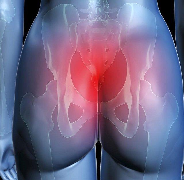 Обращение к врачу при болях в копчике у мужчин и женщин: тревожные симптомы, выбор специалиста и методы диагностики