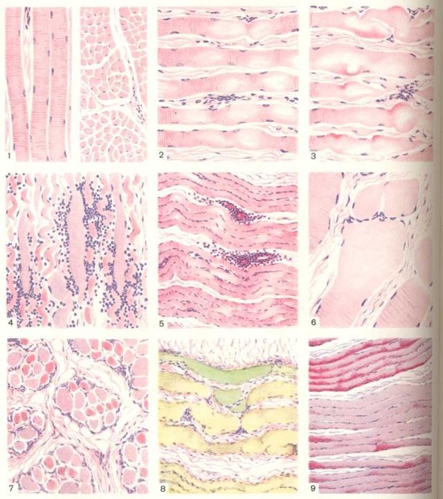 Атрофия мышц бедра: причины, лечение и профилактика