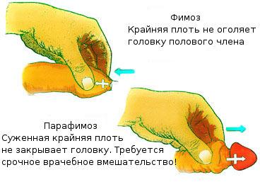 Фимоз - лечение без операции в домашних условиях у взрослых мужчин