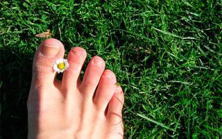 Как избавиться от бородавки на пальцах ног: лечение и выведение