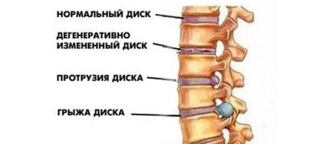 Физические упражнения при протрузии поясничного отдела позвоночника: гимнастика, ЛФК, зарядка, йога