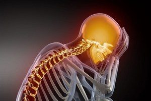 Остеохондроз шейного отдела позвоночника: симптомы и лечение, ощущения и признаки, код по МКБ-10