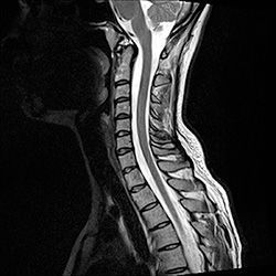 Смещение шейных позвонков: симптомы и лечение, последствия и признаки, упражнения, ЛФК и гимнастика при смещении позвонков шейного отдела